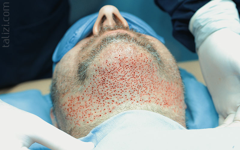 Photo: Beard zone after follicular units extraction