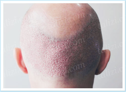 Photo: Back of the head after follicular units extraction
