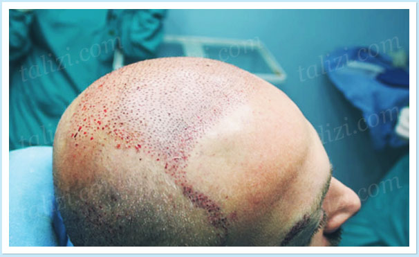 Photo: The head of the patient after hair transplant surgery