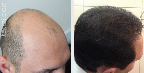 Most Amazing Hair Restoration 6 Months Result By Bio Stimulated Fue Method Surgery Done Dr Amrendra Ar