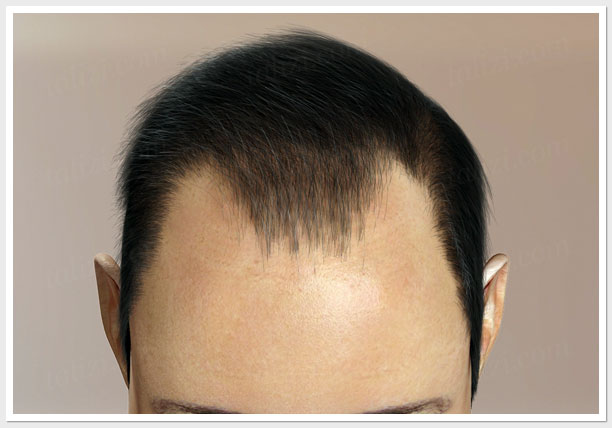 III level of hair loss