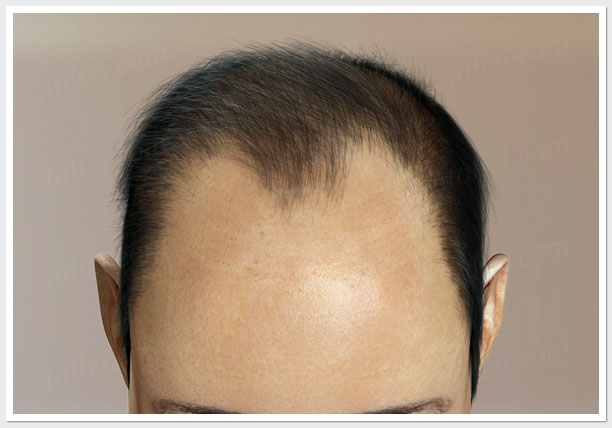 IV level of hair loss