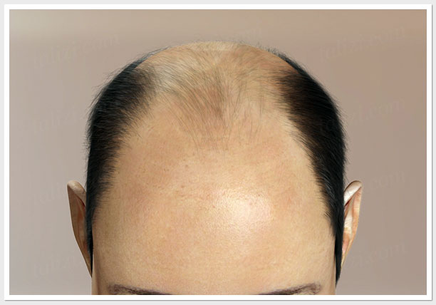VI level of hair loss