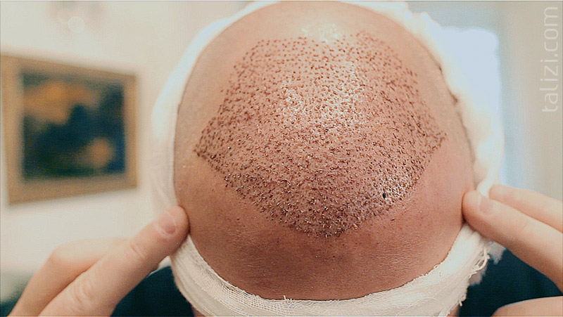 Scar-Free FUE Hair Transplant in Talizi