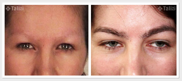 Before and after restoration of eyebrows