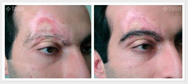 Before and after restoration of eyebrow