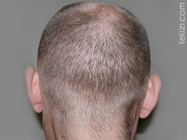 Donor area 1 month after a hair transplant using the FUE method