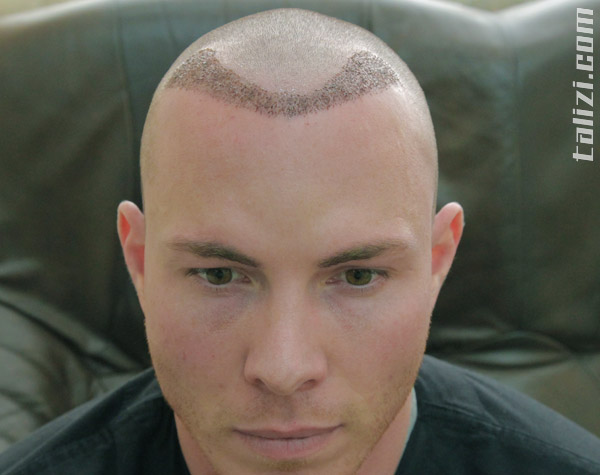 The head of our patient Justin the next day after hair transplant surgery