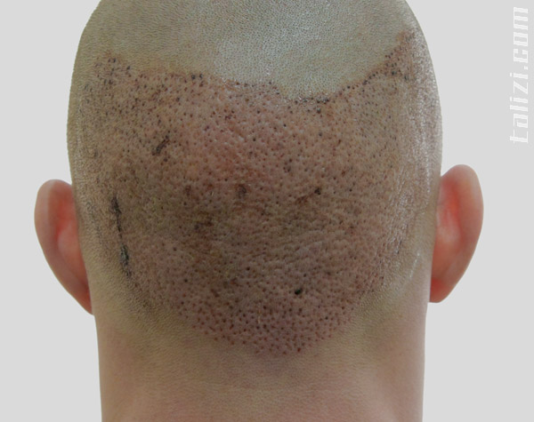 Back of the head of our patient Justin the next day after hair transplant surgery