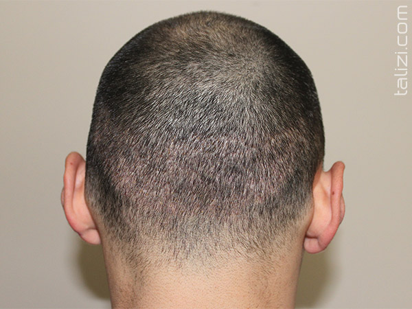 Donor area 1 week after a hair transplant using the FUE method