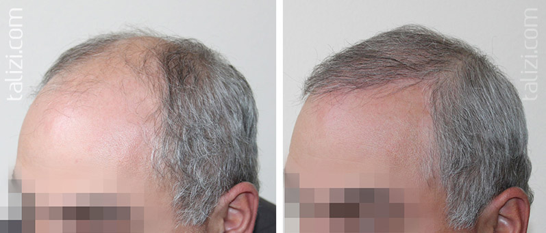 Photo: before and after transplant of 3000 grafts using the Strip method