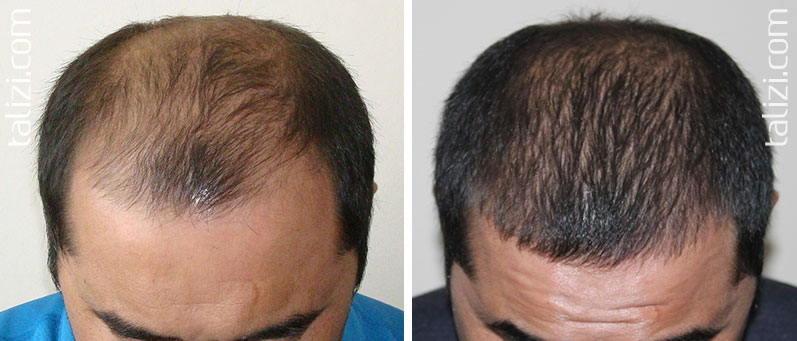 Photo: before and after transplant of 3000 grafts using the FUE method