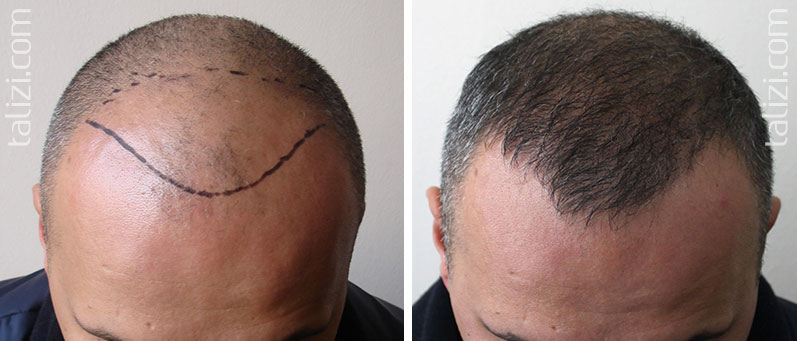 Photo: before and after transplant of 1600 grafts using the FUE method