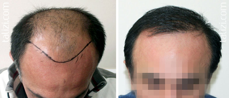Photo: before and after transplant of 2500 grafts using the FUE method