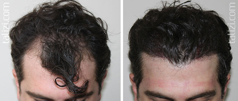 Photo: before and after transplant of 2000 long hair grafts