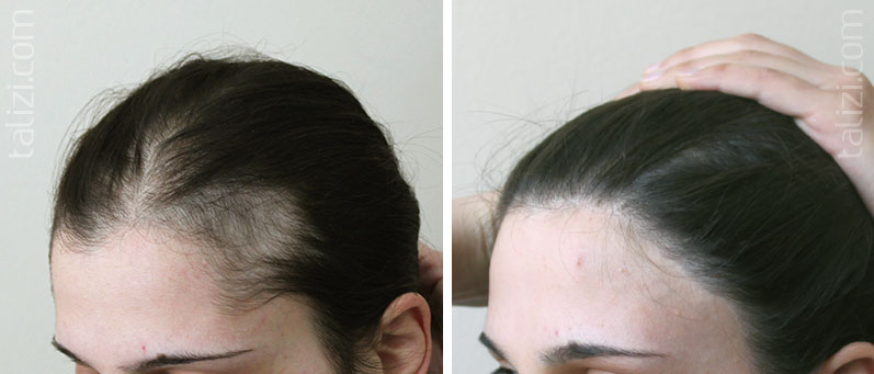 Photo: before and after transplant of 1500 grafts using the Strip method