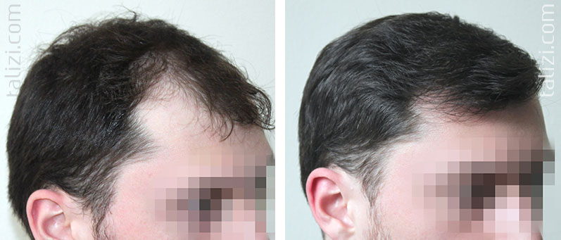 Photo: Before and after transplant of 2500 grafts using the Strip method
