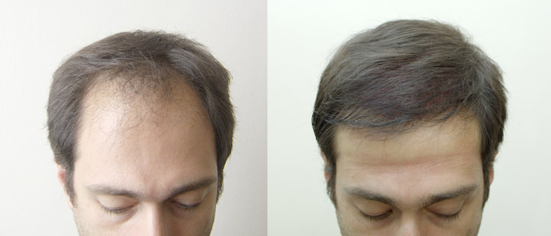 Photo: before and after transplant of 3000 long hair grafts