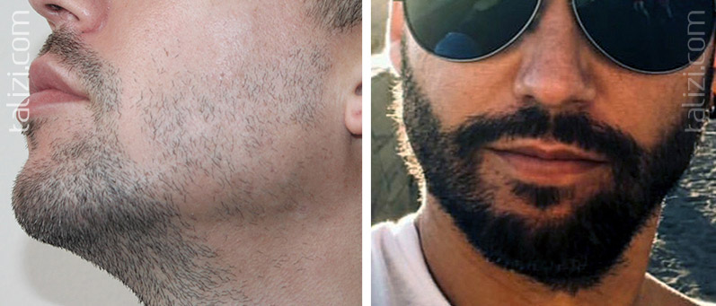 Photo: before and after beard transplant