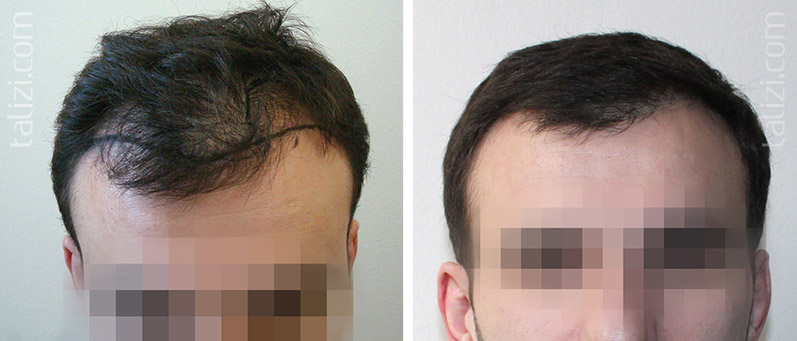 Photo: Before and after transplant of 1500 grafts using strip method