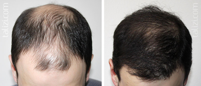 Photo: Before and after transplant of 3300 grafts using strip method