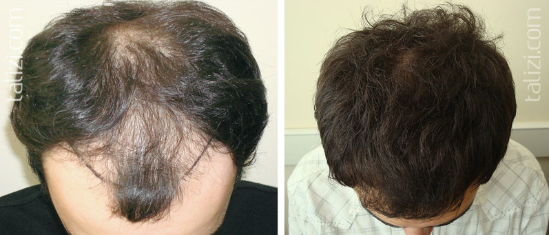 Photo: Before and after transplant of 2,500 grafts using the Strip method