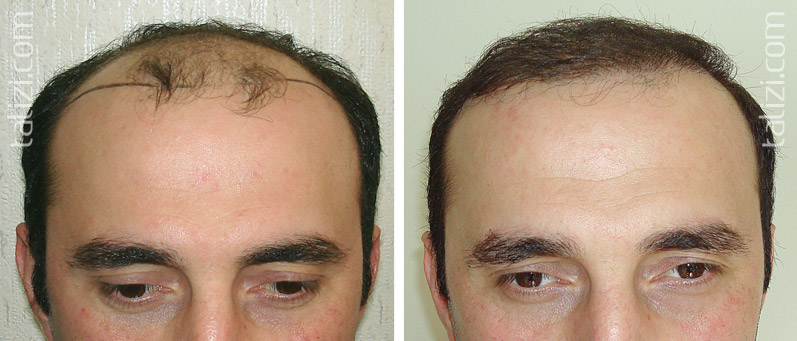 Photo: Before and after transplant of 2500 grafts using strip method