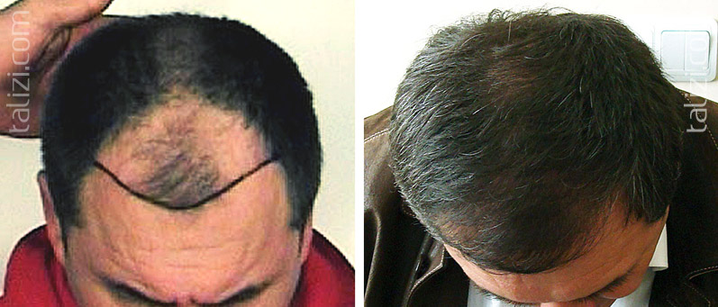 Photo: Before and after transplant of 2600 grafts using strip method