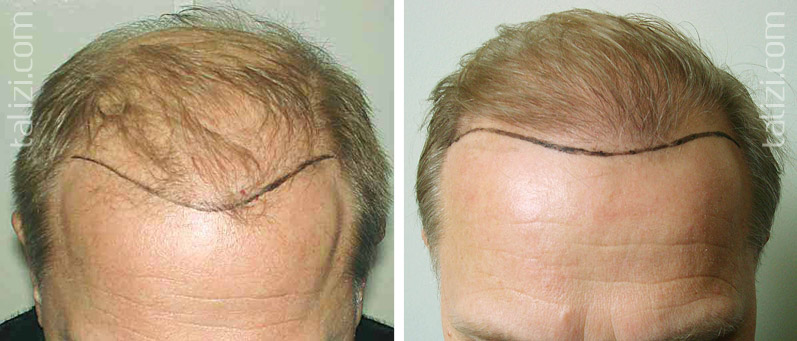 Photo: Before and after transplant of 3000 grafts using strip method. On right – patient before second hair transplant