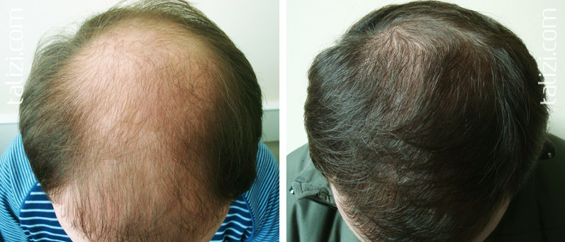 Photo: Before and after transplant of 3000 grafts using strip method