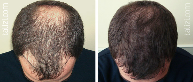 Photo: Before and after transplant of 3,000 grafts using the Strip method