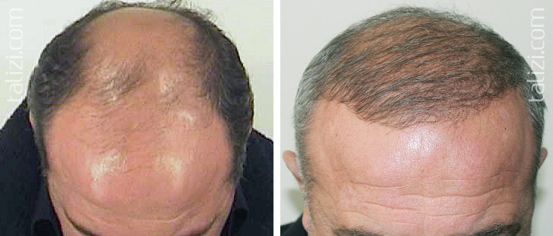 Photo: Before and after transplant of 3400 grafts using strip method