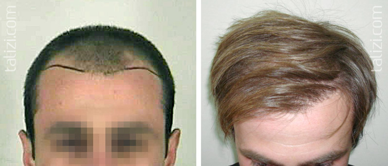 Photo: Before and after transplant of 1800 grafts using strip method