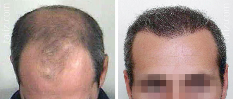 Photo: Before and after transplant of 3500 grafts using strip method