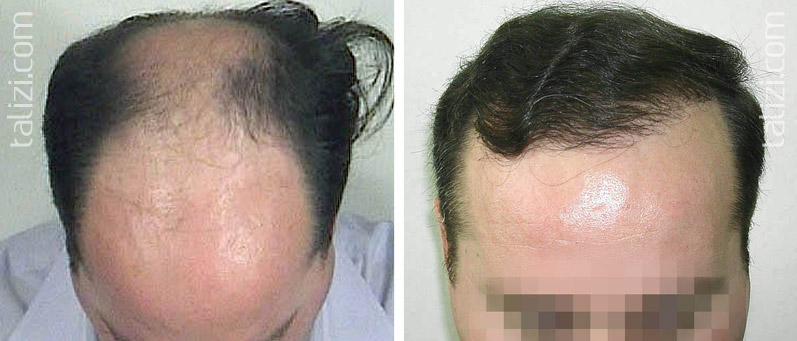 Photo: Before and after transplant of 4000 grafts using strip method