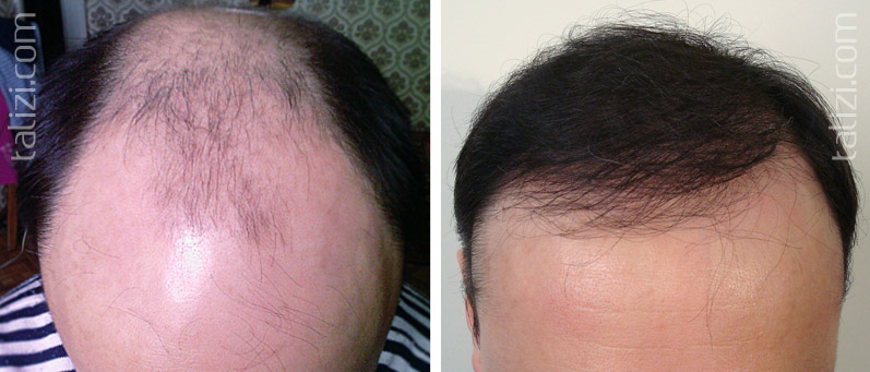 Photo: Before and after transplant of 4500 grafts using combined method (strip + FUE).