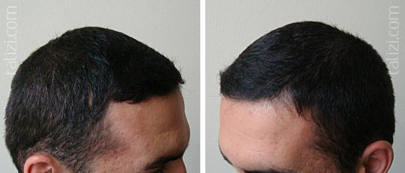 Photo: Before and after transplant of 2700 grafts using FUE method