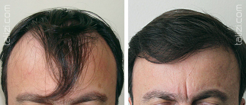 Photo: Before and after transplant of 2000 grafts using FUE method