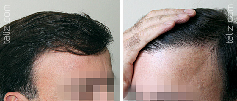 Photo: After transplant of 2000 grafts using FUE method