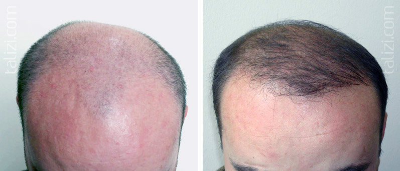 Photo: Before and after transplant of 2500 grafts using FUE method