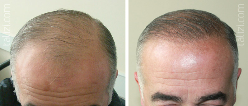 Photo: Before and after transplant of 2000 grafts using strip method
