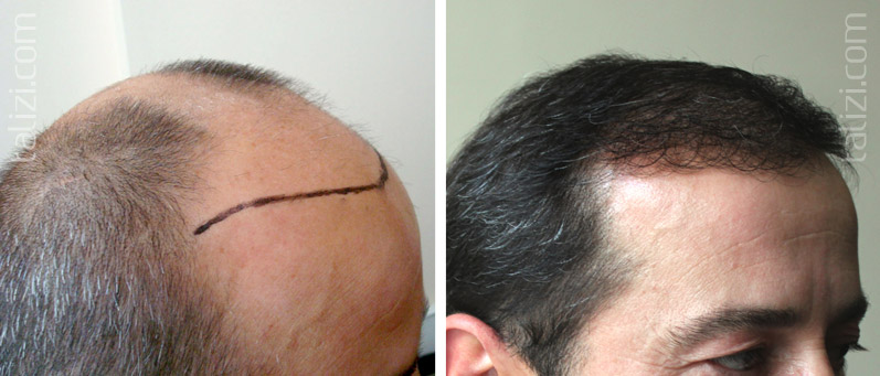 Photo: Before and after transplant of 3000 grafts using FUE method