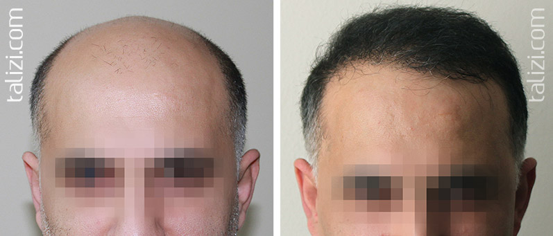 Photo: Before and after transplant of 4000 grafts using FUE method