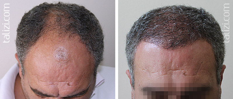 Photo: Before and after transplant of 2800 grafts using Long Hair Transplant