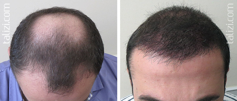 Photo: Before and after transplant of 3400 grafts using Long Hair Transplant