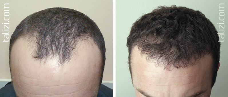 Photo: Before and after transplant of 1200 grafts using FUE method