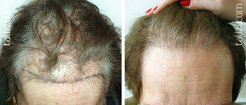 Photo: Before and after transplant of 1300 grafts using FUE method