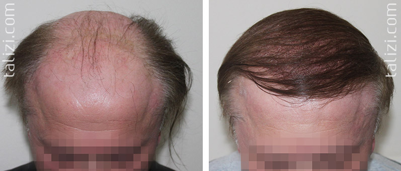 Photo: Before and after transplant of 4000 grafts using Long Hair Transplant
