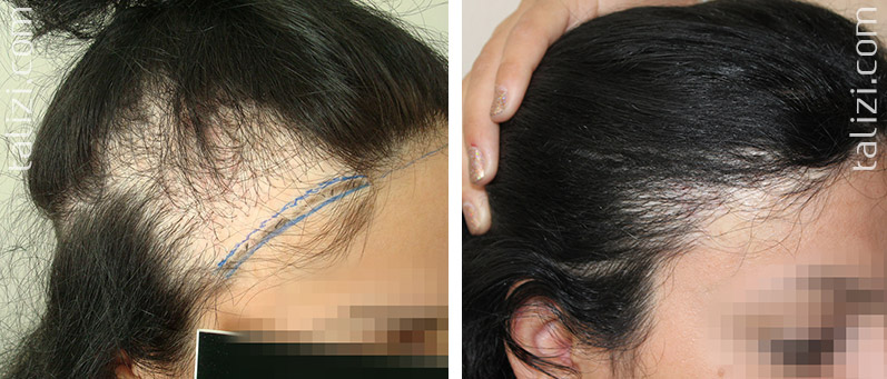 Photo: Before and after transplant of 2200 grafts using strip method