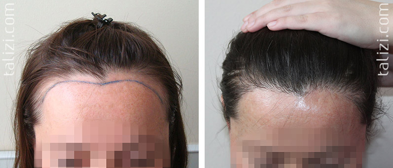 Photo: Before and after transplant of 1000 grafts using strip method